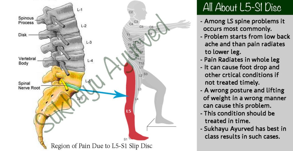 Ayurvedic Treatment of L5-S1 Slip Disc without Surgery
