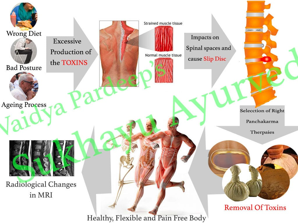 How does Panchakarma for slip disc is so successful